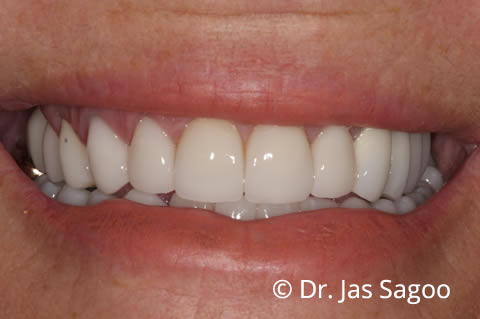 After Crowns and implants